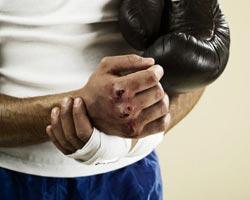 Что такое синдром костяшка боксера ушиб кулака и костяшки лечение и профилактика