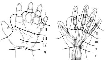 Na použitie v klinike GOU VPO S-PBGPMA v tejto schéme sme vykonali zmeny  týkajúce sa topografie zón na prvom prst ruky. V súlade s tým rozlišujeme  ... 01bee0c72b