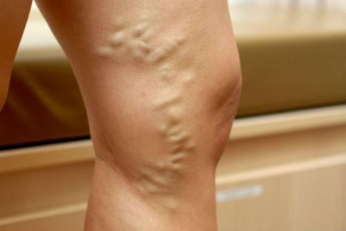 что если у мужчины болят ноги